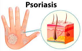 Psoriasis: educación y nuevos tratamientos, el camino para el control de la enfermedad