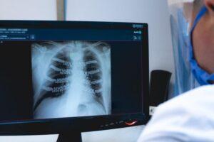 Destacan al Hospital Escuela por utilizar prótesis hechas con impresión 3D