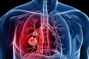 La ANMAT aprobó dos inmunoterapias para el tratamiento en primera línea del cáncer de pulmón